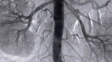 A stylized view of an arteriography (a contrast X-Ray of the kidneys and aorta) that also could resemble a painting of a summer tree and its leafy branches.